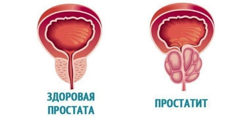 Лечение простатита в Израиле